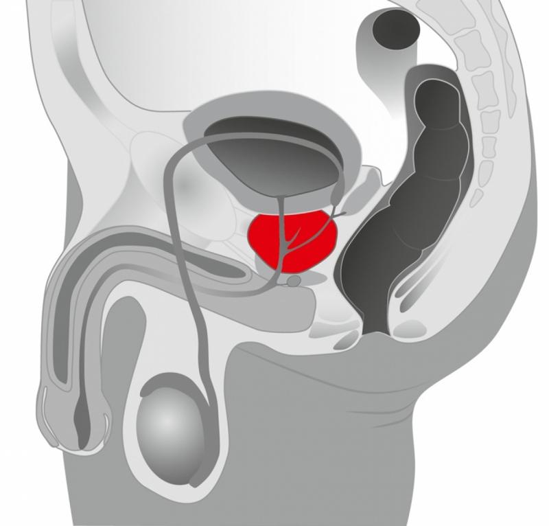 Стимулятор простаты - BK Prostate Plug